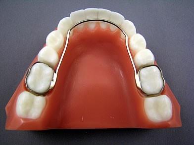 شکل- سیم کمانی پشت دندانی