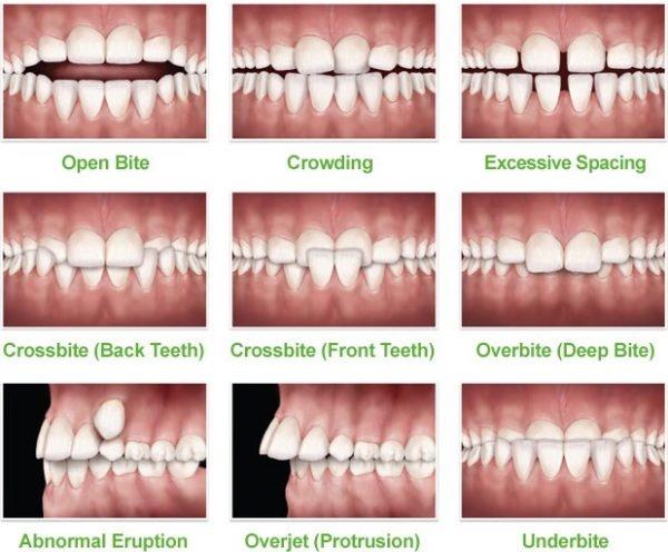 شکل- انواع مشکلات بایت در تصویر بالا نشان داده شده است. به ترتیب از بالا سمت راست به پایین سمت چپ: فاصله بین دندانها، شلوغی و بهم ریختگی دندانها، اوپن بایت ، اوربایت، کراس بایت جلوی دهان، کراس بایت عقب دهان، آندربایت، اورجت و بیرون زدن غیر طبیعی دندان.