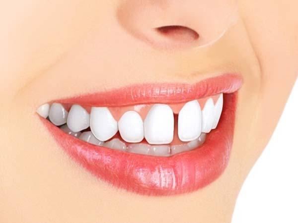 فاصله بین دندانها