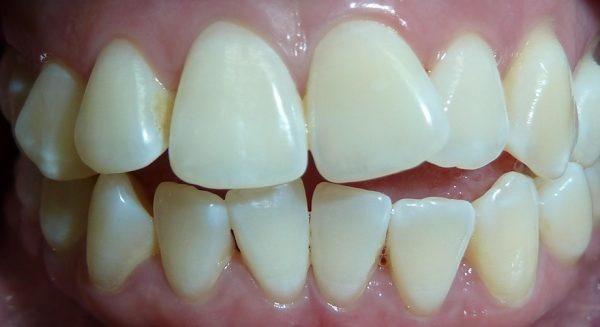 شلوغی و به هم ریختگی دندانها