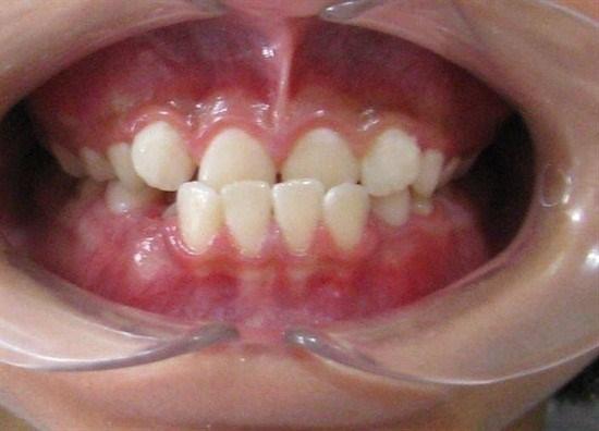علایم و درمان کراس بایت