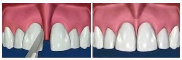 جراحی فرنوم لب بالا و زبان (فرنکتومی)
