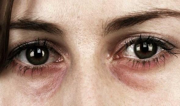درمان ارتودنسی و مشکلات بینی