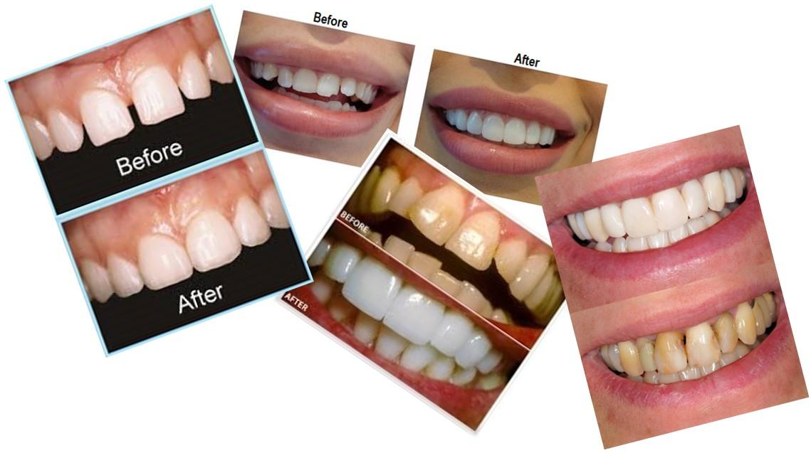 ونیر و براکت پشت دندانی