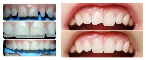 صاف کردن دندان بدون براکت ارتودنسی