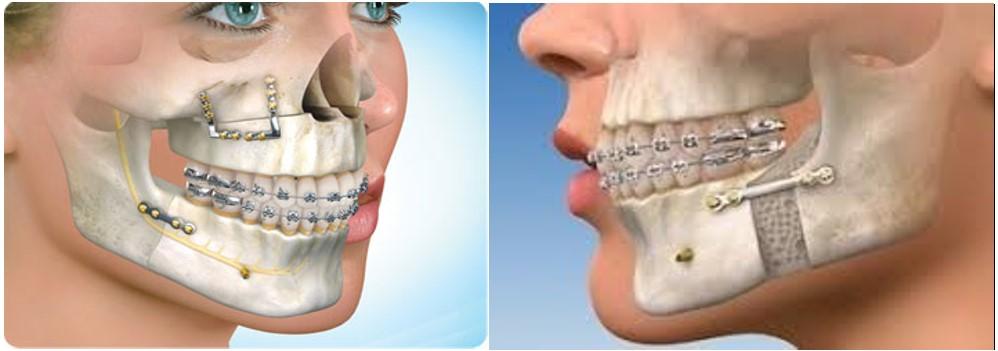 جراحی ارتودنسی (جراحی ارتوگناتیک)