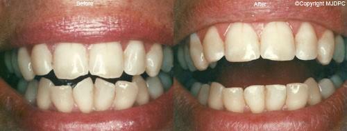 فشردگی یا نامرتبی دندان ها