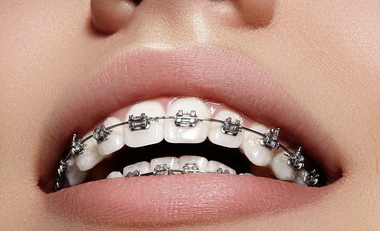 ارتودنسی یا دندانپزشکی زیبایی؟