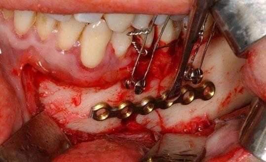 جراحی ارتوگناتیک (ارتودنسی همراه با جراحی فک)