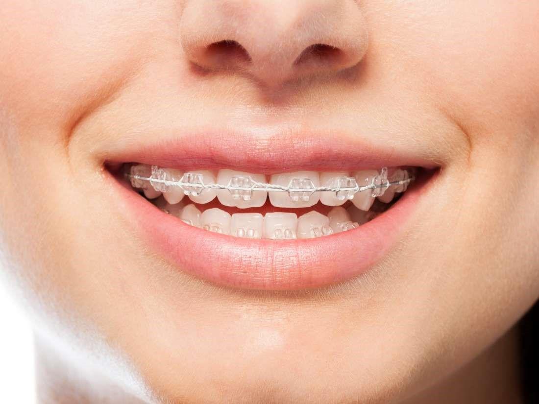 درمان دندان قروچه (براکسیسم)