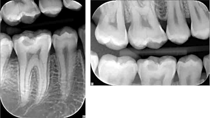 اشعه ایکس و تصاویر رادیوگرافی در ارتودنسی