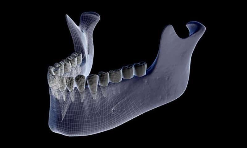پوکی استخوان و مشکلات فک و دندانی