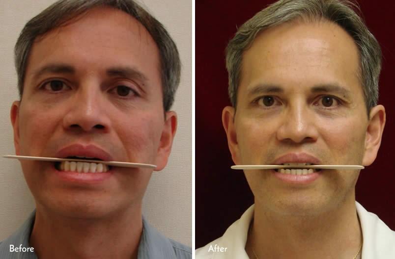 درمان مشکلات فک ها بدون جراحی