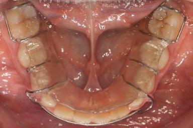 رابطه درمان ارتودنسی و پوسیدگی دندان