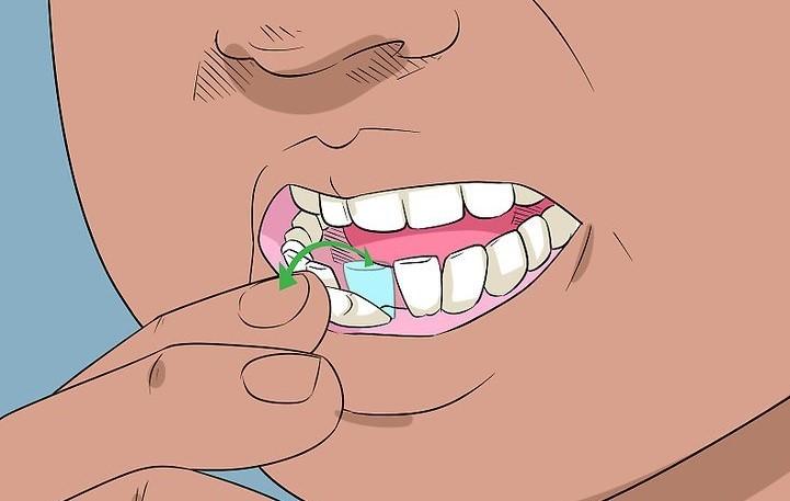 درمان دندان لق شده در بزرگسالان
