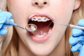 هیپودنشیا یا دندان درنیاوردن مادرزادی
