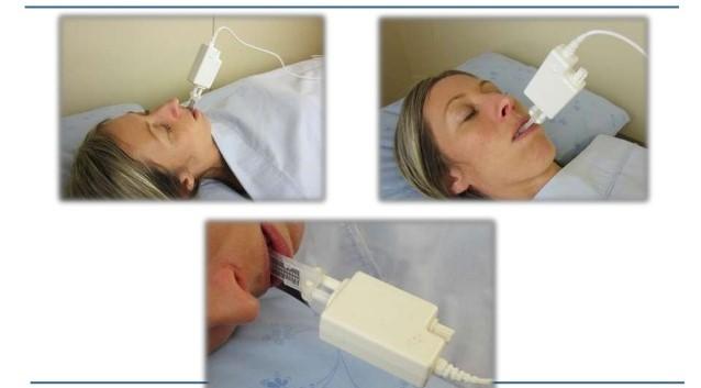 درمان آپنه انسدادی خواب با کمک ارتودنسی