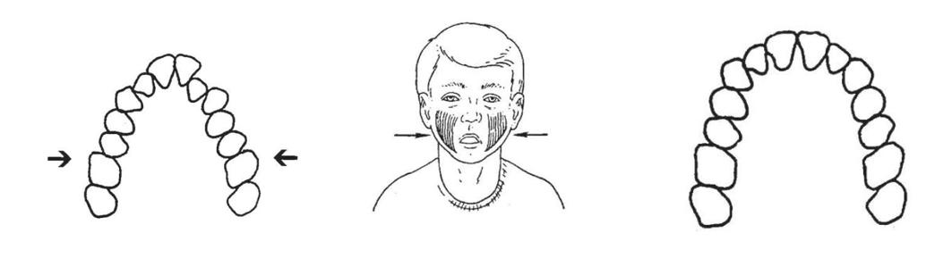 مجرای تنفسی، تنفس و ارتودنسی