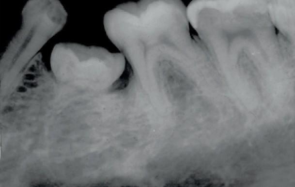 انکیلوز دندان یا جوش خوردن دندان