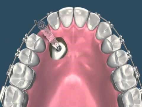 درمان ارتودنسی دندان های نهفته
