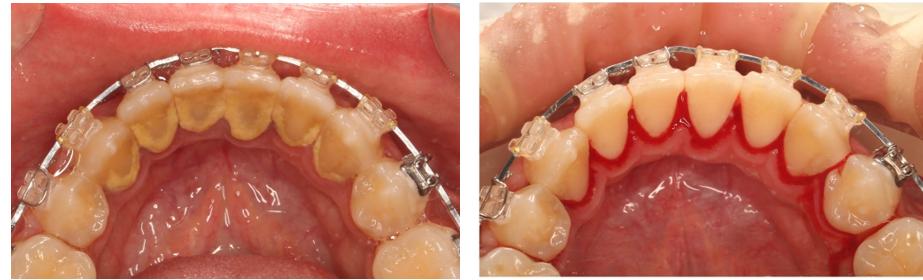 مراجعه به دندانپزشک در طول ارتودنسی